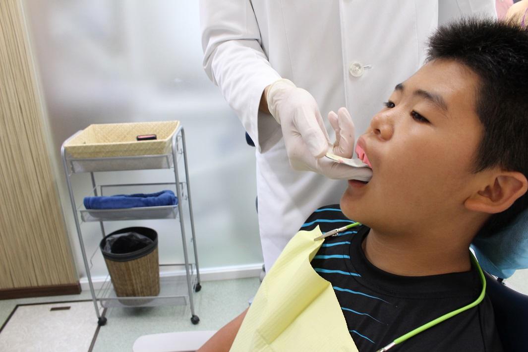 歯医者で噛み合わせを確認する男児